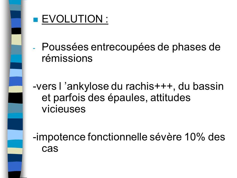 EVOLUTION : Poussées entrecoupées de phases de rémissions. -vers l 'ankylose du rachis+++, du bassin et parfois des épaules, attitudes vicieuses.