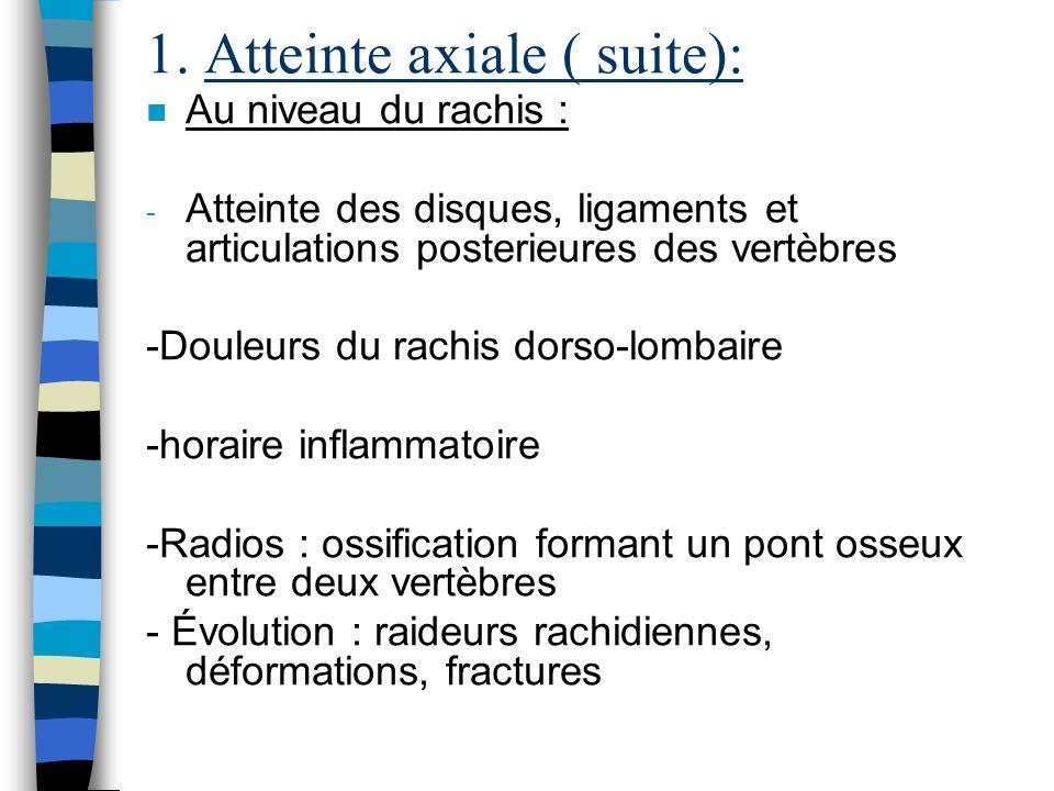 1. Atteinte axiale ( suite):