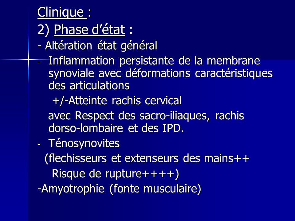 Clinique : 2) Phase d'état : - Altération état général