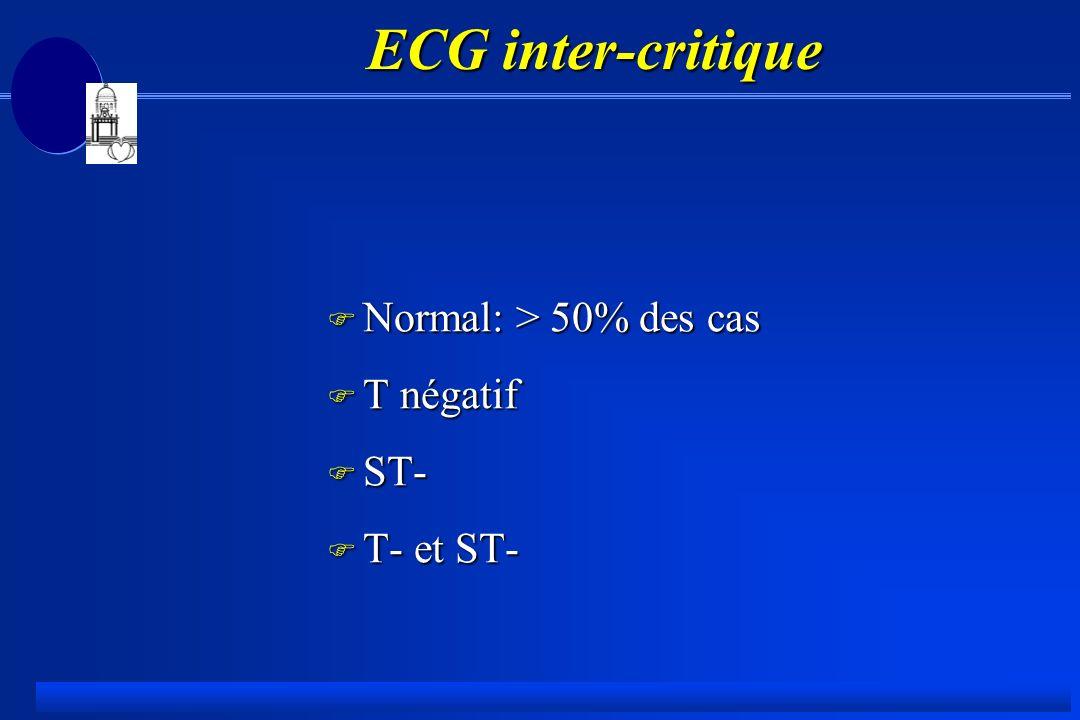 ECG inter-critique Normal: > 50% des cas T négatif ST- T- et ST-