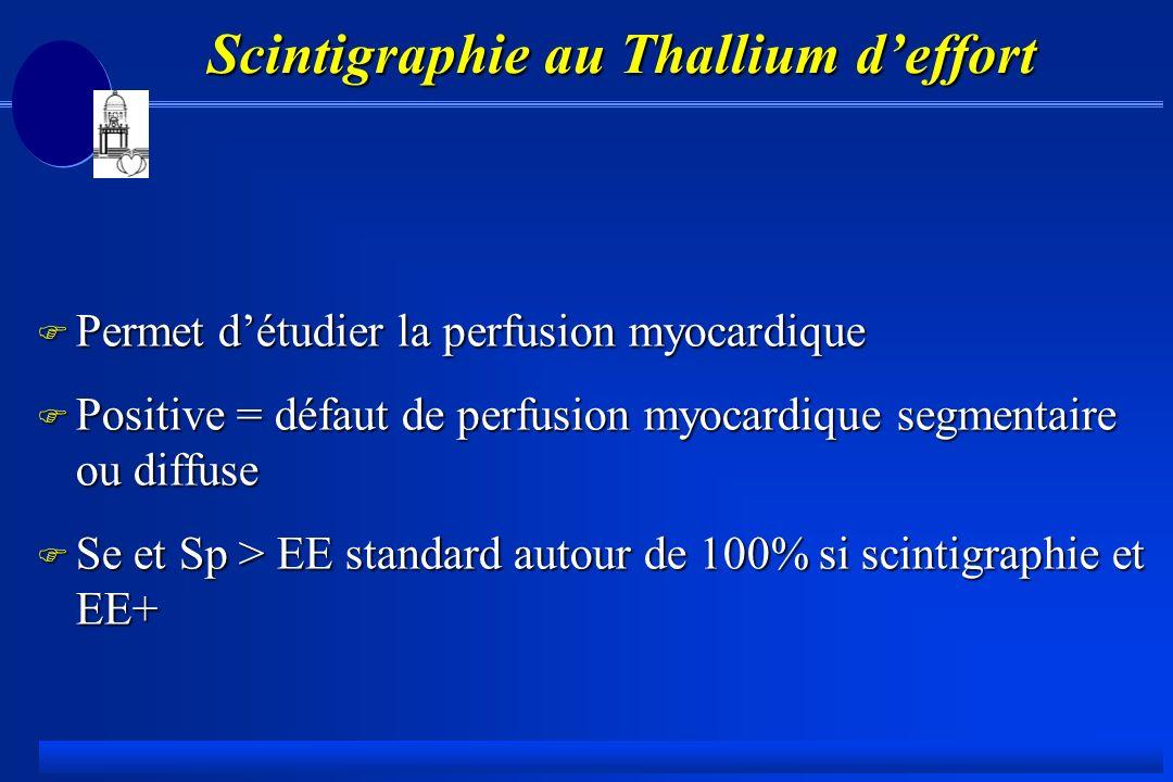 Scintigraphie au Thallium d'effort