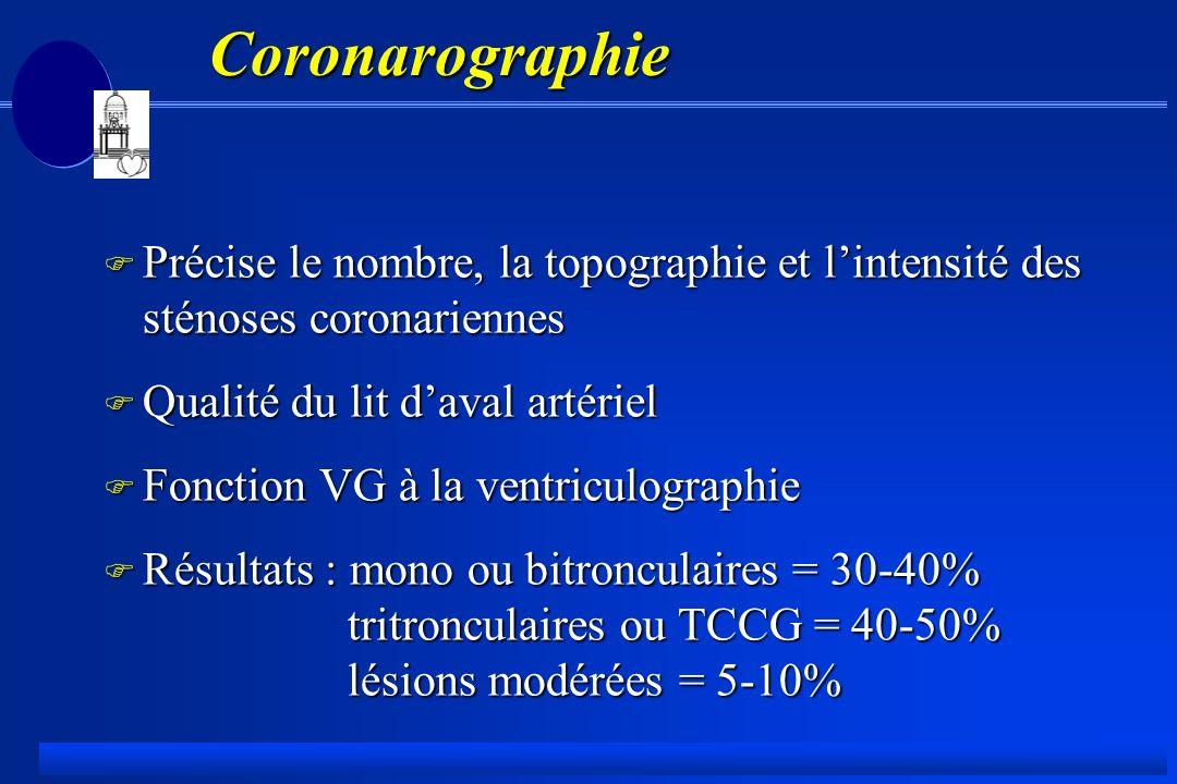 Coronarographie Précise le nombre, la topographie et l'intensité des sténoses coronariennes. Qualité du lit d'aval artériel.