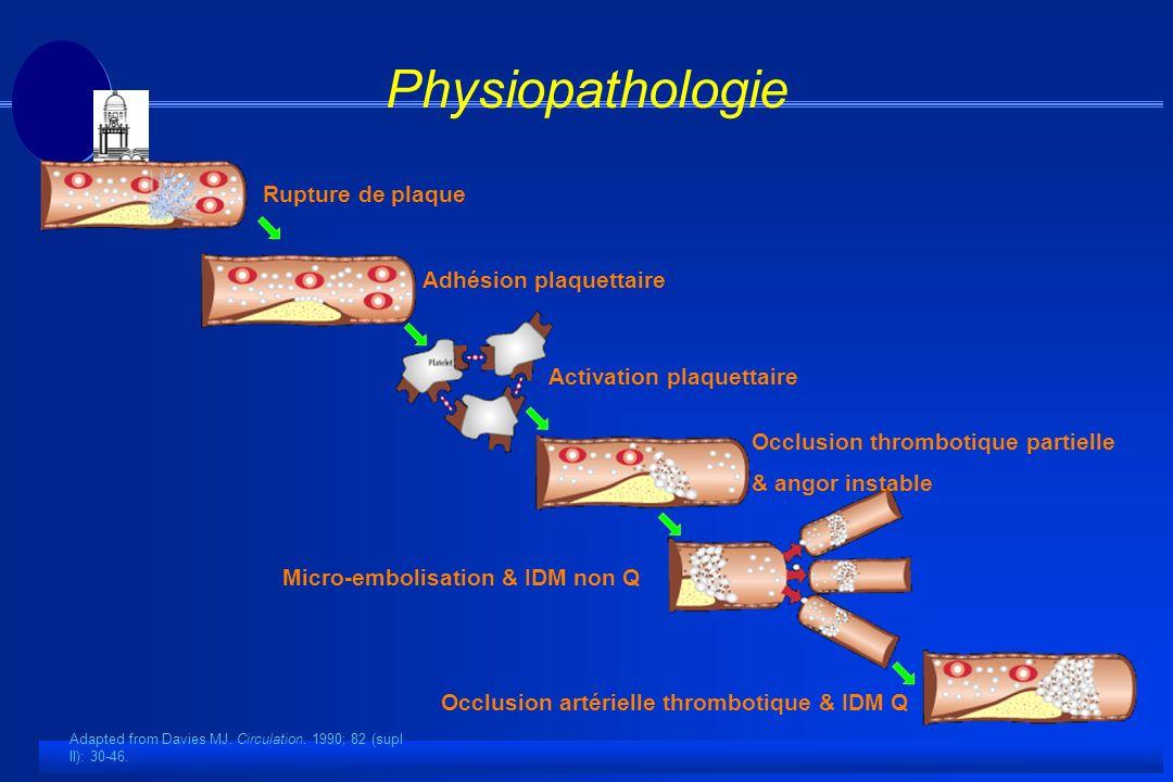 Physiopathologie Rupture de plaque Adhésion plaquettaire