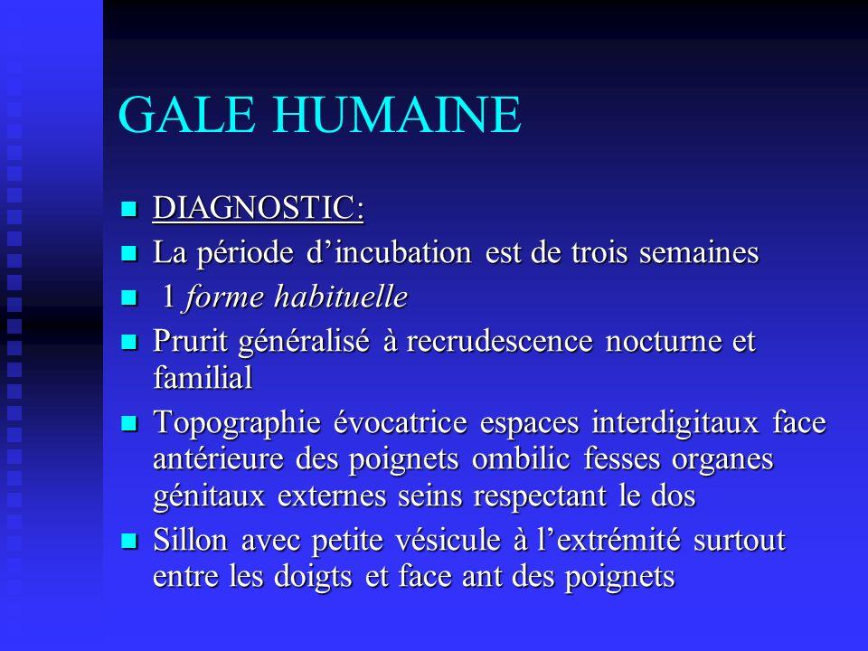 GALE HUMAINE DIAGNOSTIC: La période d'incubation est de trois semaines