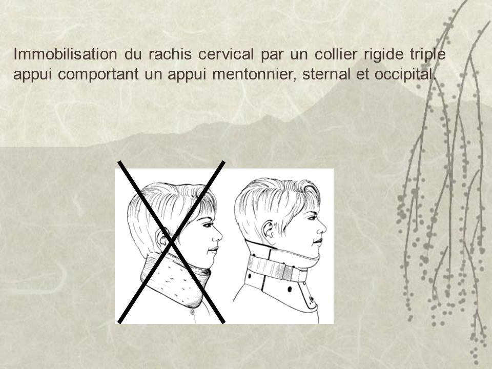 Immobilisation du rachis cervical par un collier rigide triple appui comportant un appui mentonnier, sternal et occipital.