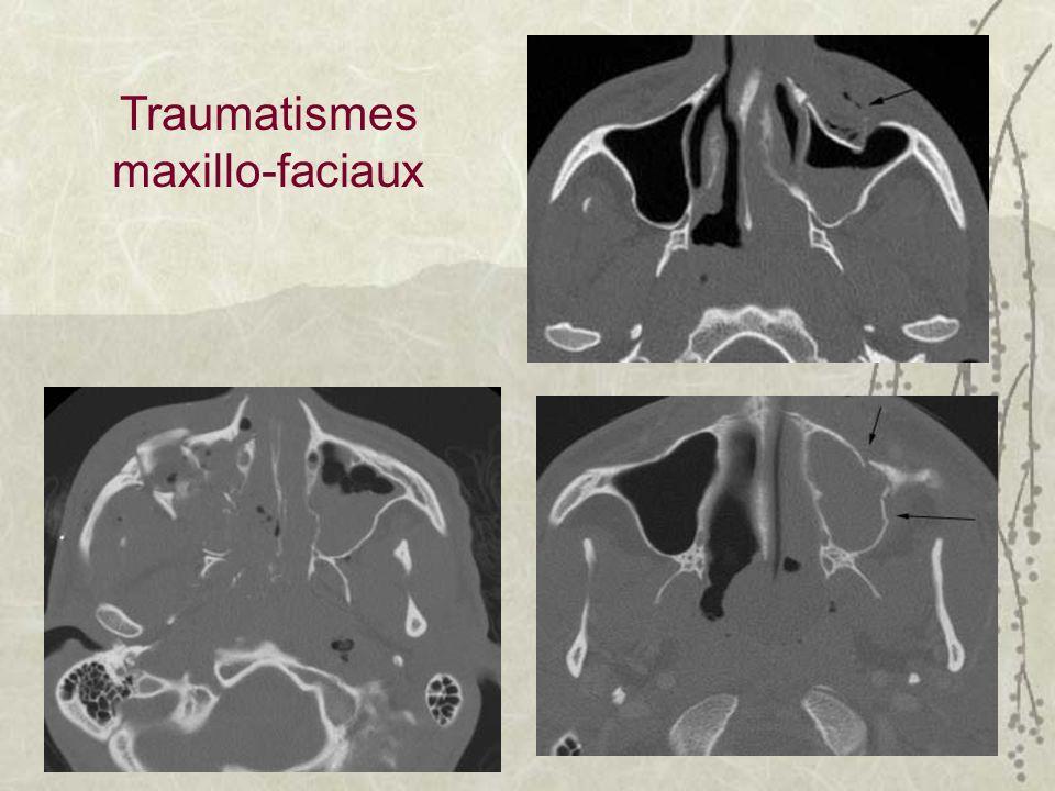 Traumatismes maxillo-faciaux