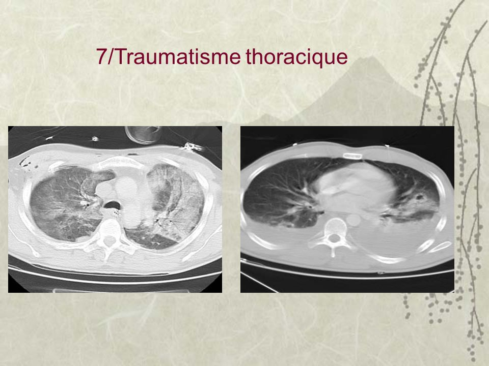 7/Traumatisme thoracique
