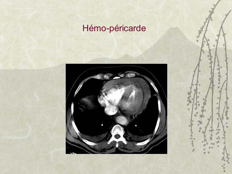 Hémo-péricarde