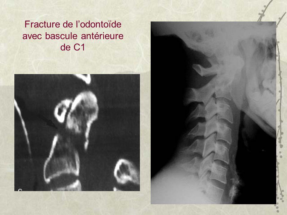 Fracture de l'odontoïde avec bascule antérieure de C1