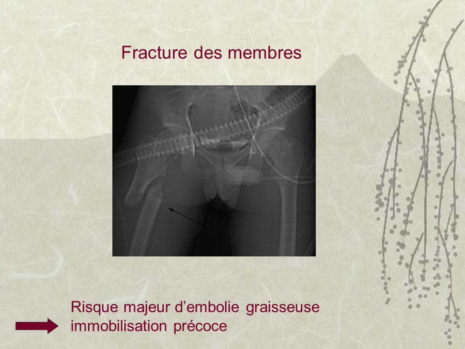 Fracture des membres Risque majeur d'embolie graisseuse immobilisation précoce