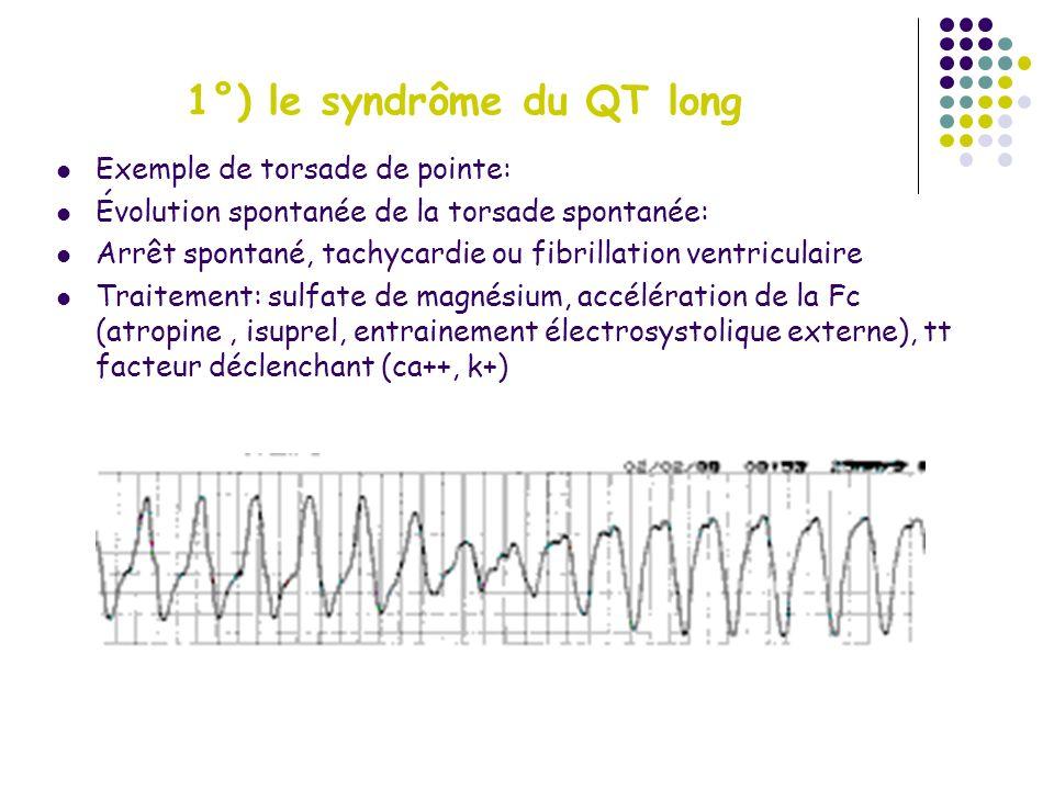 1°) le syndrôme du QT long
