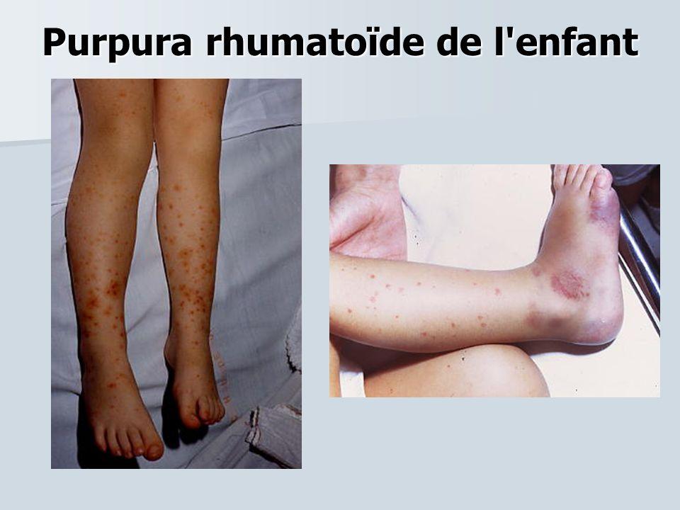 Purpura rhumatoïde de l enfant