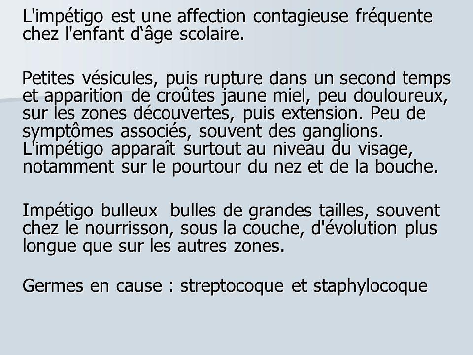 Germes en cause : streptocoque et staphylocoque