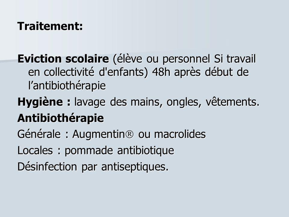 Traitement:Eviction scolaire (élève ou personnel Si travail en collectivité d enfants) 48h après début de l'antibiothérapie.
