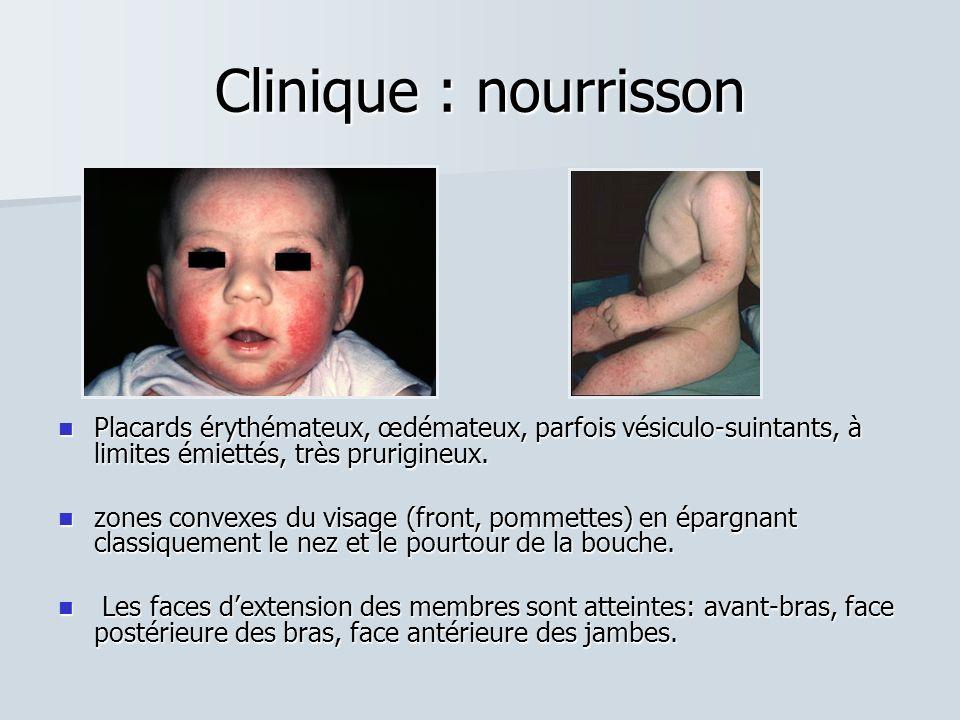 Clinique : nourrissonPlacards érythémateux, œdémateux, parfois vésiculo-suintants, à limites émiettés, très prurigineux.