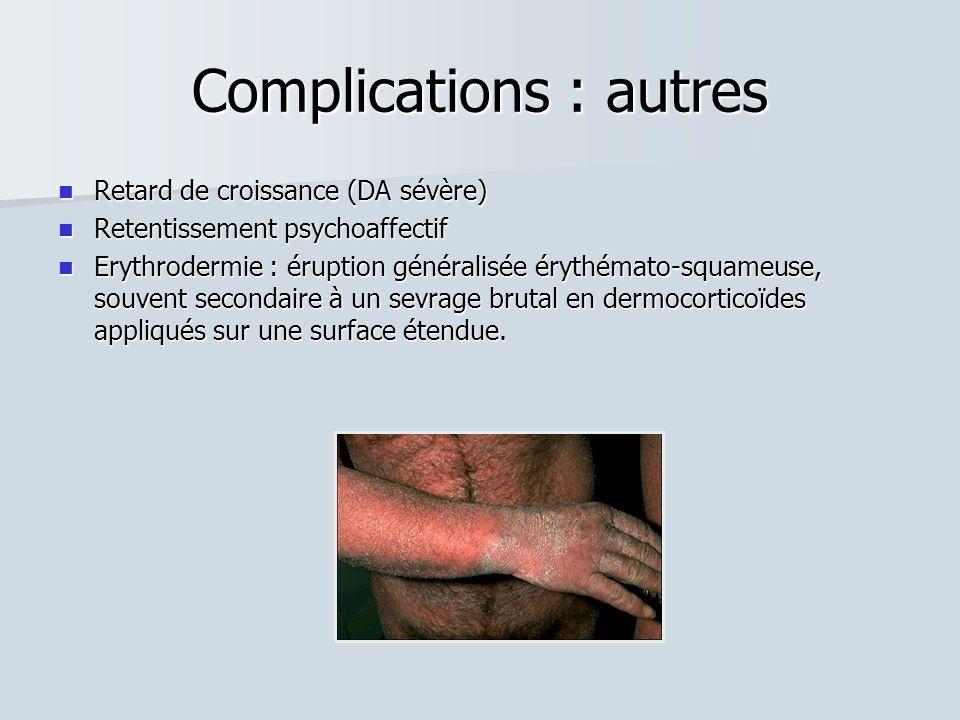 Complications : autres