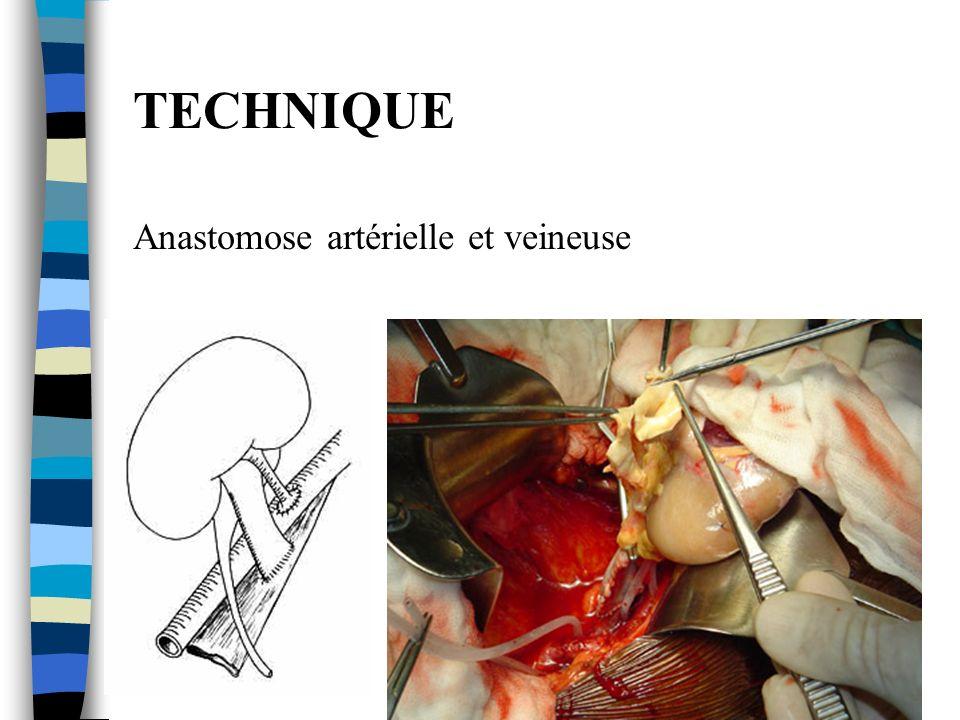 TECHNIQUE Anastomose artérielle et veineuse