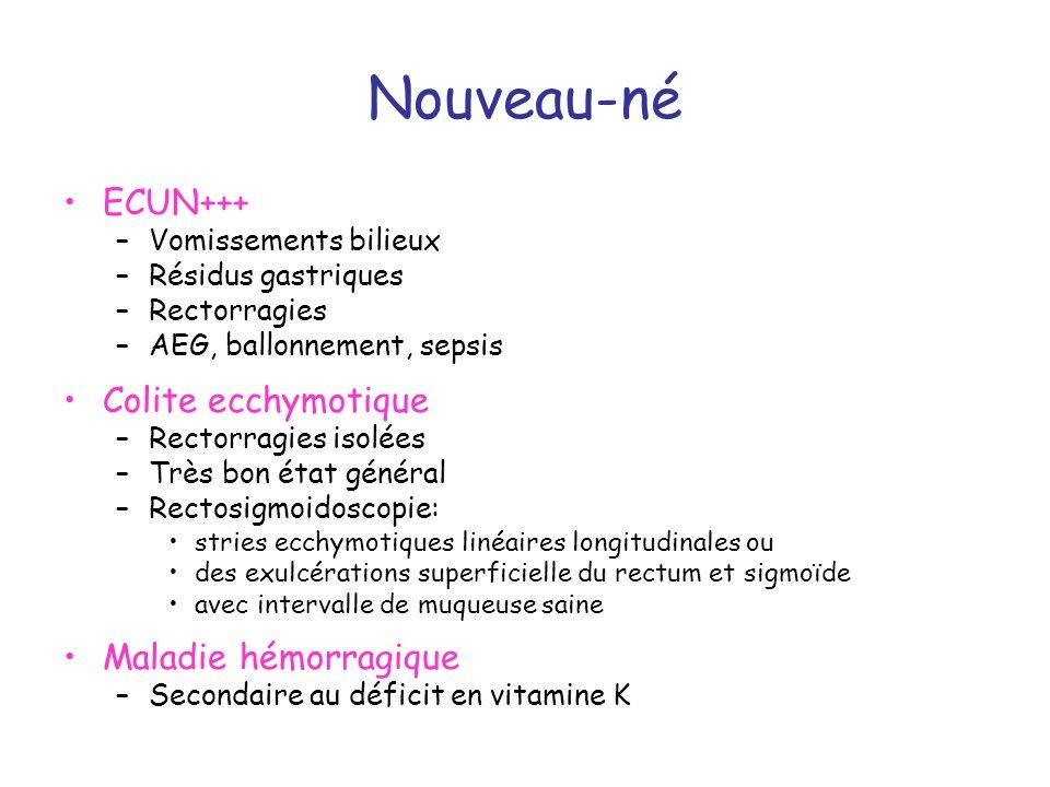 Nouveau-né ECUN+++ Colite ecchymotique Maladie hémorragique