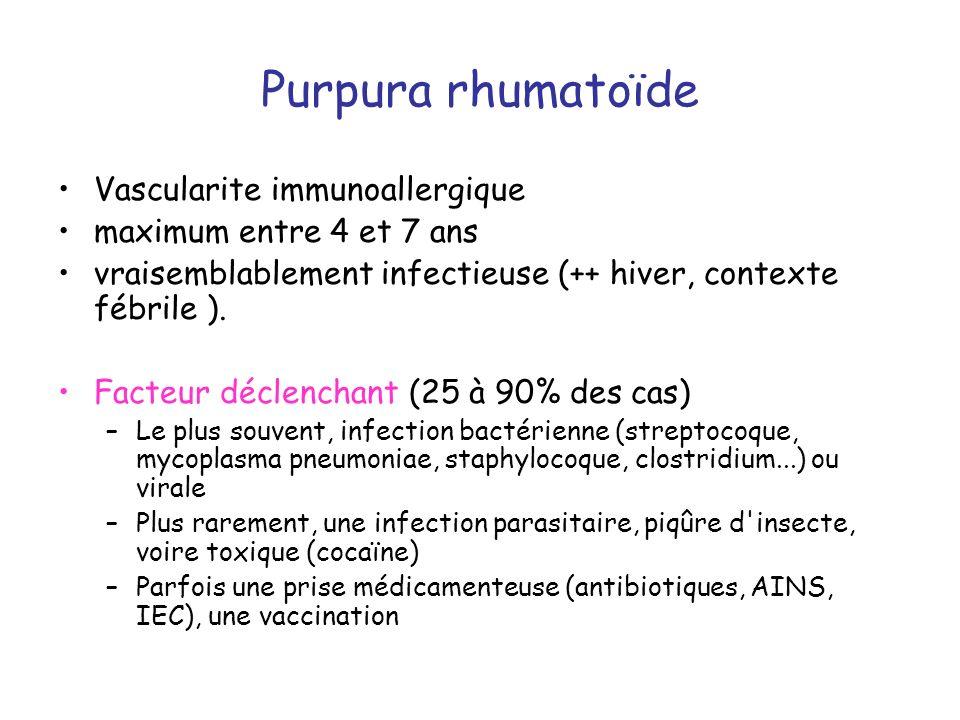 Purpura rhumatoïde Vascularite immunoallergique