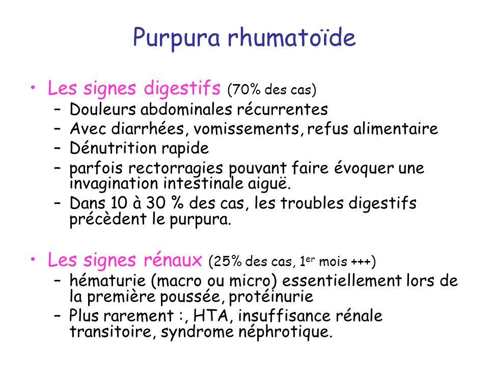 Purpura rhumatoïde Les signes digestifs (70% des cas)