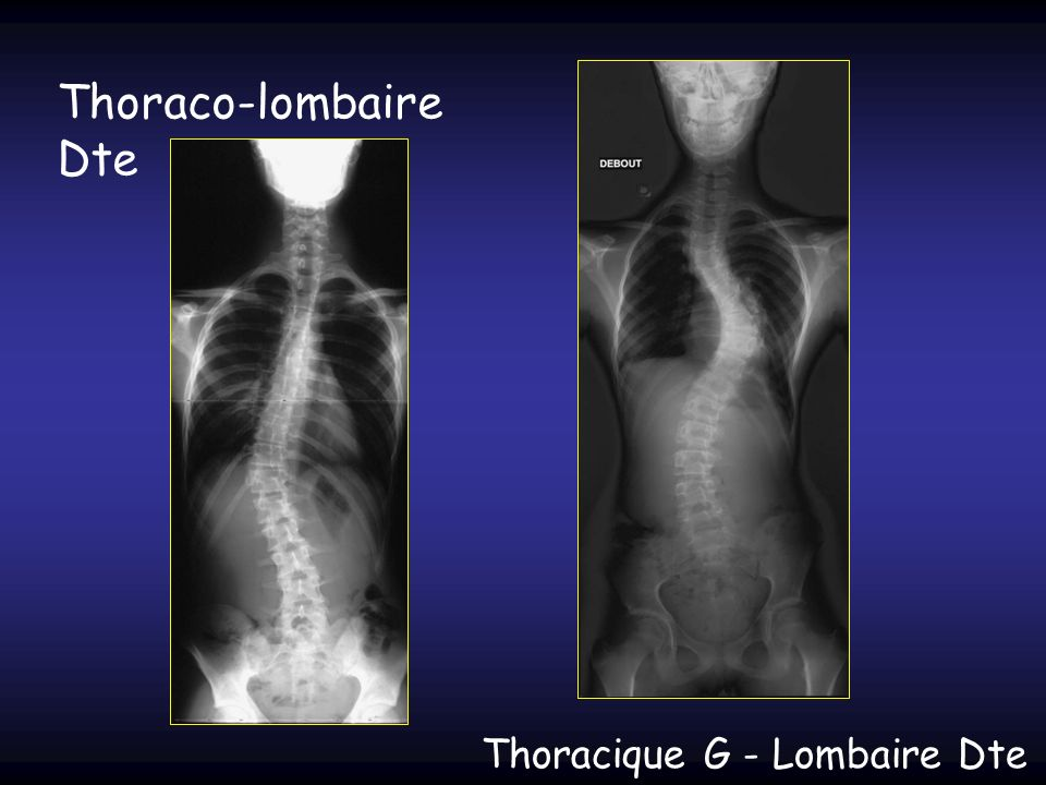 Thoraco-lombaire Dte Thoracique G - Lombaire Dte