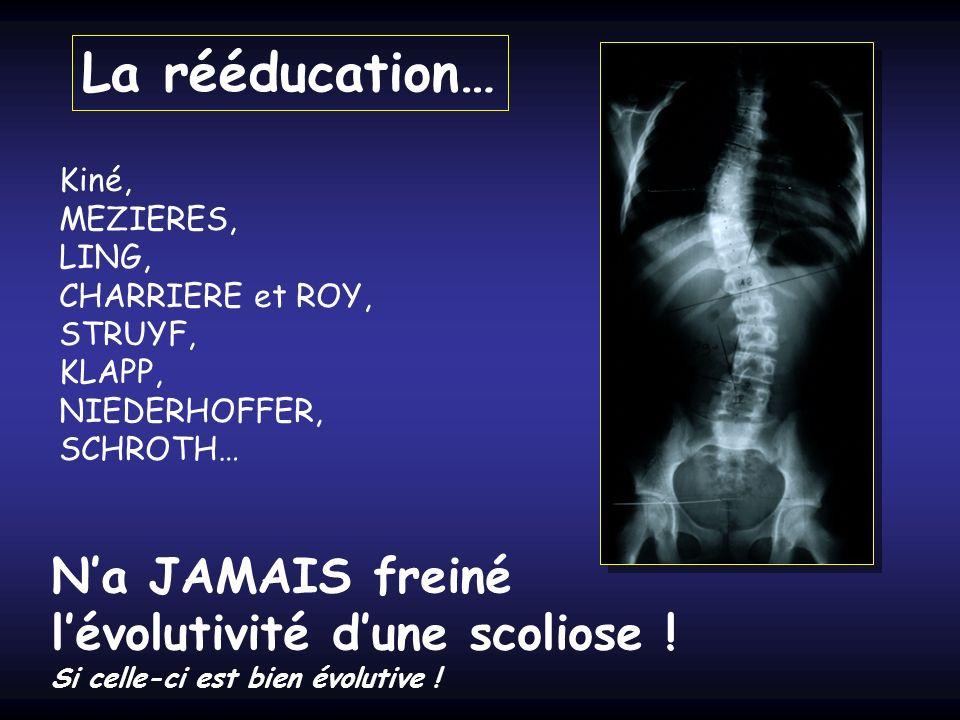 La rééducation… N'a JAMAIS freiné l'évolutivité d'une scoliose ! Kiné,