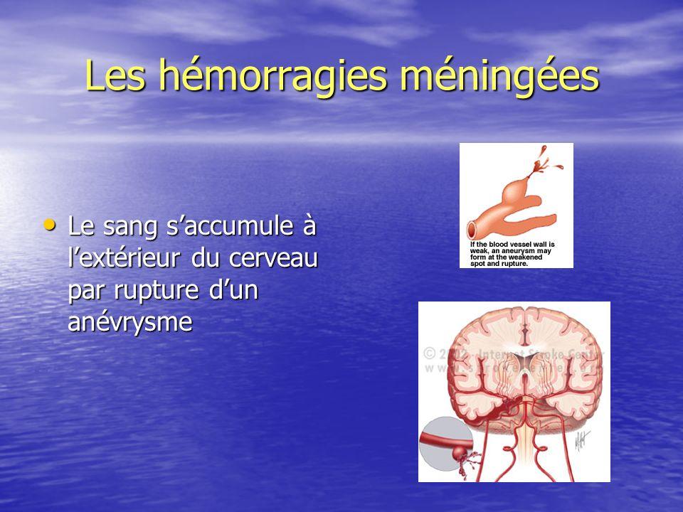 Les hémorragies méningées