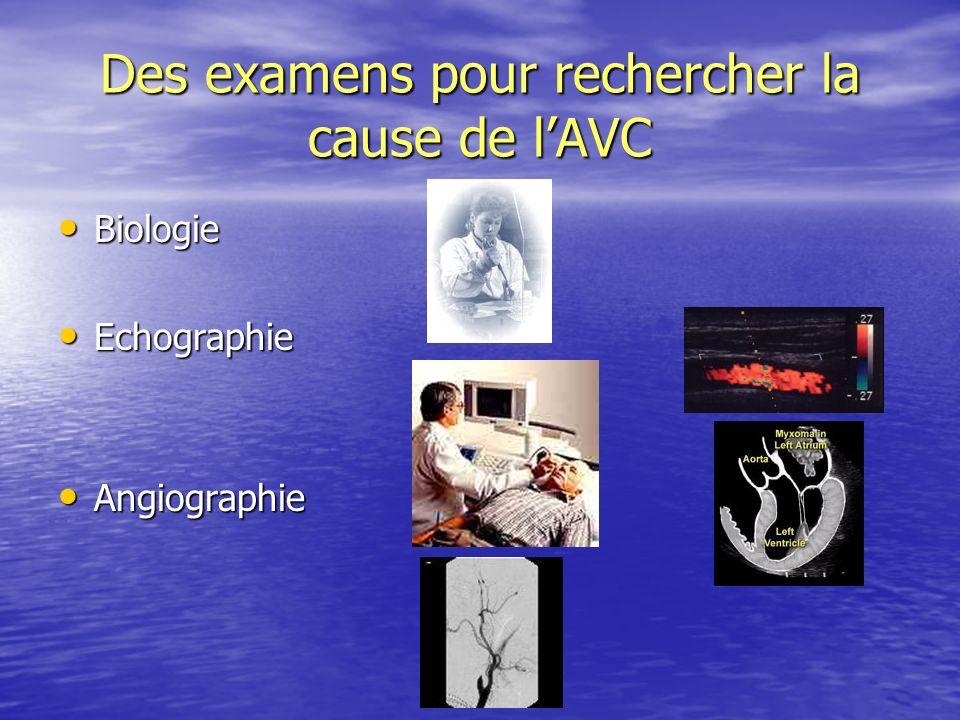 Des examens pour rechercher la cause de l'AVC