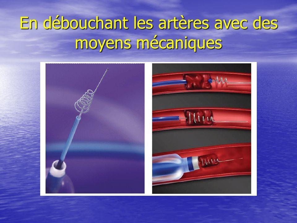 En débouchant les artères avec des moyens mécaniques