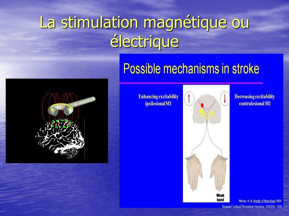 La stimulation magnétique ou électrique