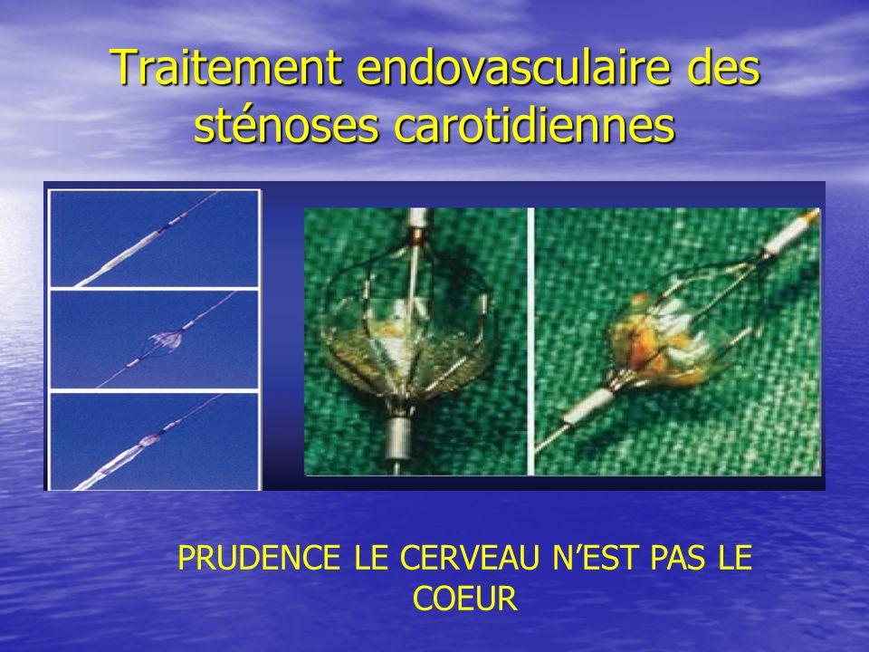 Traitement endovasculaire des sténoses carotidiennes