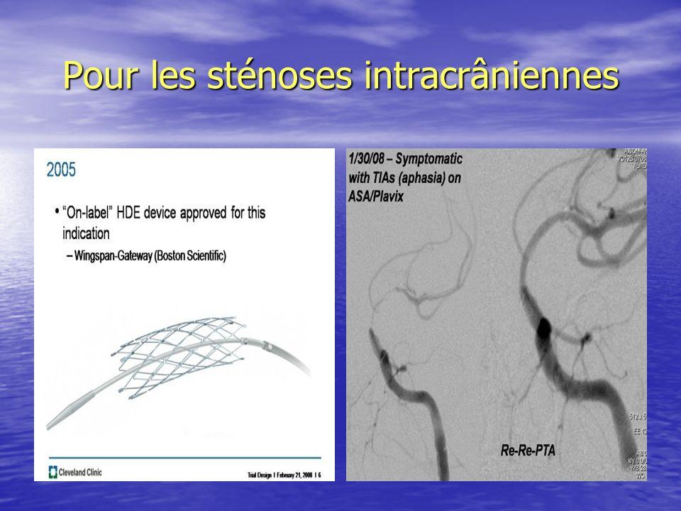 Pour les sténoses intracrâniennes