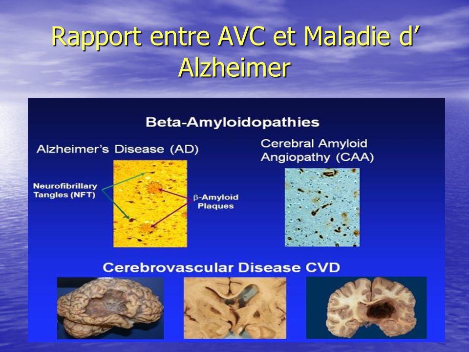 Rapport entre AVC et Maladie d' Alzheimer