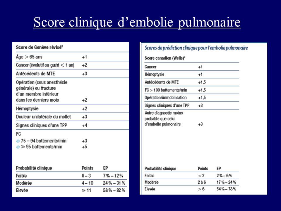 Score clinique d'embolie pulmonaire