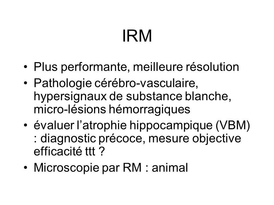 IRM Plus performante, meilleure résolution