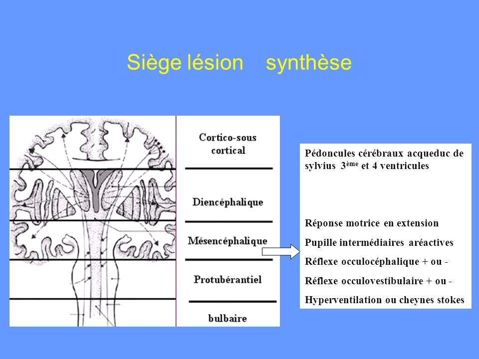 Siège lésion synthèse Pédoncules cérébraux acqueduc de sylvius 3ème et 4 ventricules. Réponse motrice en extension.