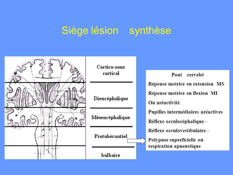 Siège lésion synthèse Pont cervelet Réponse motrice en extension MS