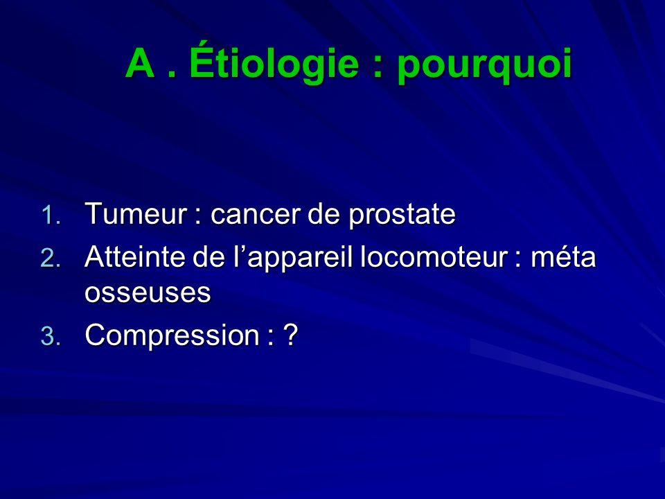 A . Étiologie : pourquoi Tumeur : cancer de prostate