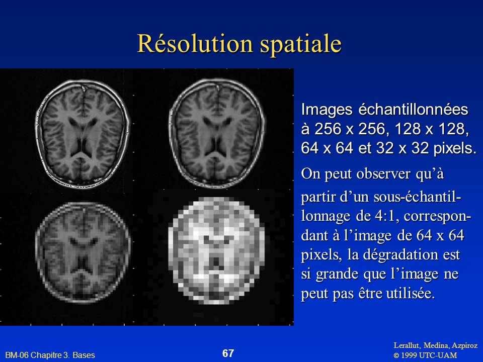 Résolution spatiale Images échantillonnées à 256 x 256, 128 x 128,