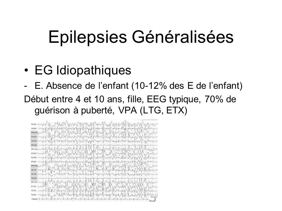 Epilepsies Généralisées