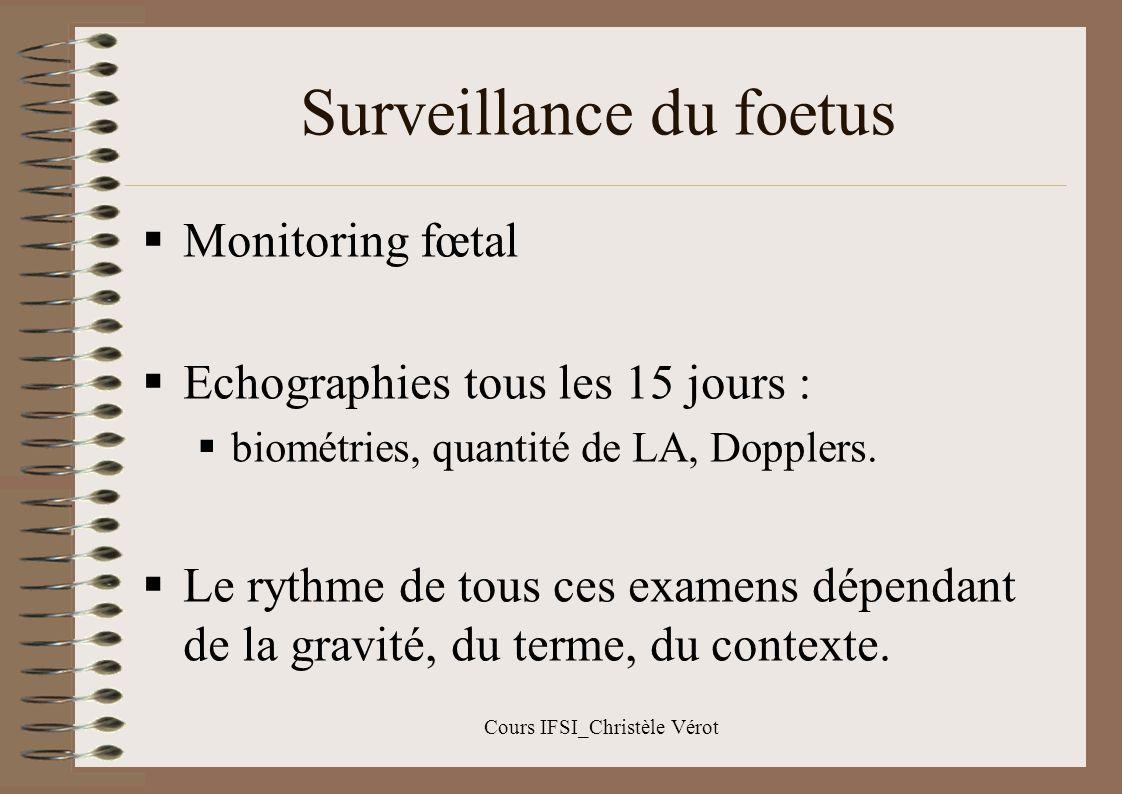 Surveillance du foetus