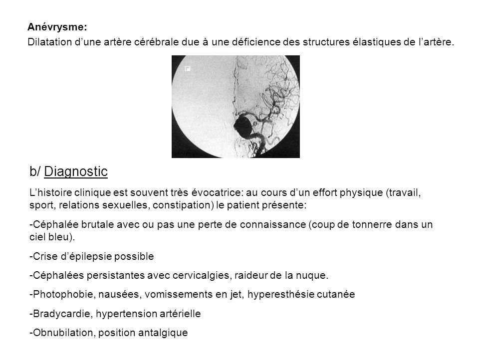 b/ Diagnostic Anévrysme: