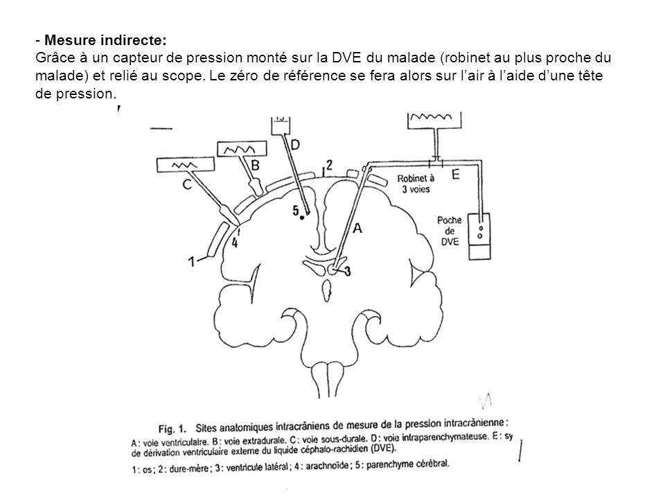 Mesure indirecte: Grâce à un capteur de pression monté sur la DVE du malade (robinet au plus proche du malade) et relié au scope.