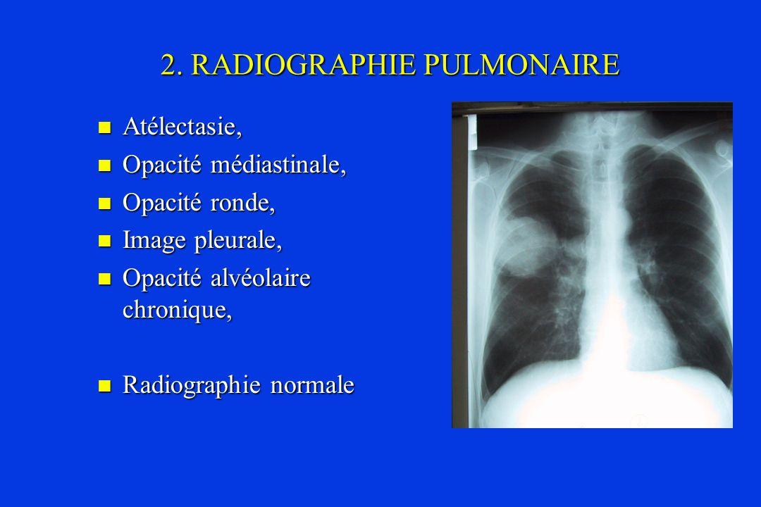 2. RADIOGRAPHIE PULMONAIRE