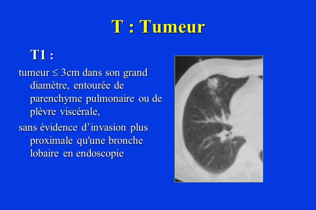 T : Tumeur T1 : tumeur  3cm dans son grand diamètre, entourée de parenchyme pulmonaire ou de plèvre viscérale,