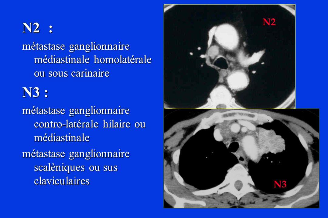 N2 N2 : métastase ganglionnaire médiastinale homolatérale ou sous carinaire. N3 : métastase ganglionnaire contro-latérale hilaire ou médiastinale.