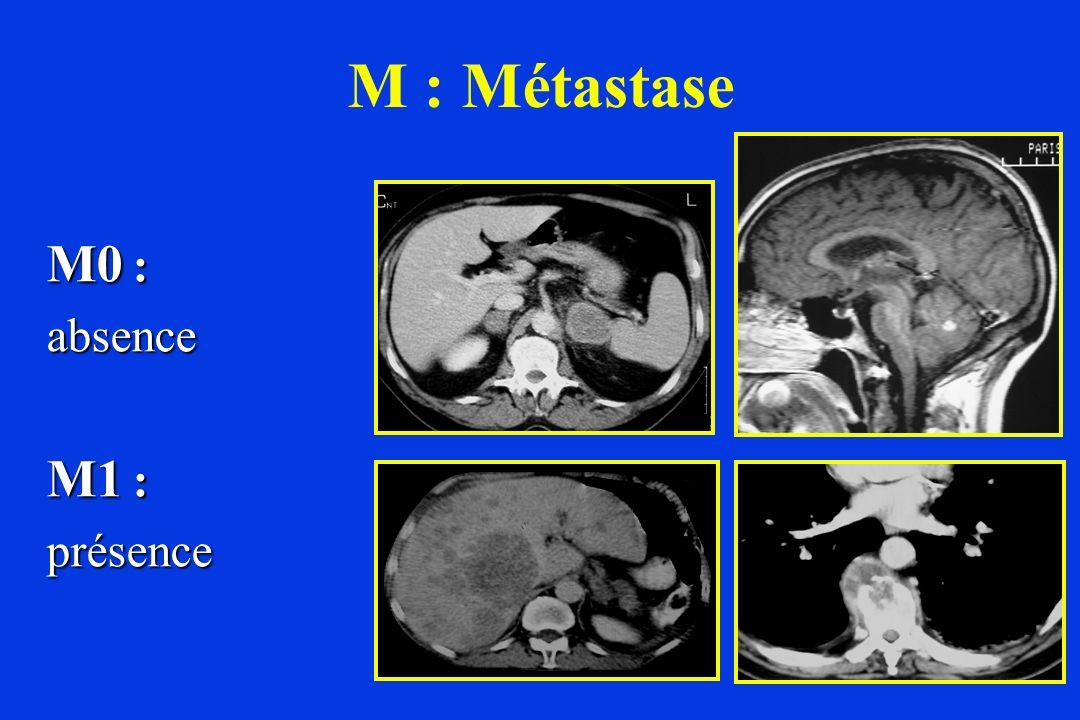 M : Métastase M0 : absence M1 : présence
