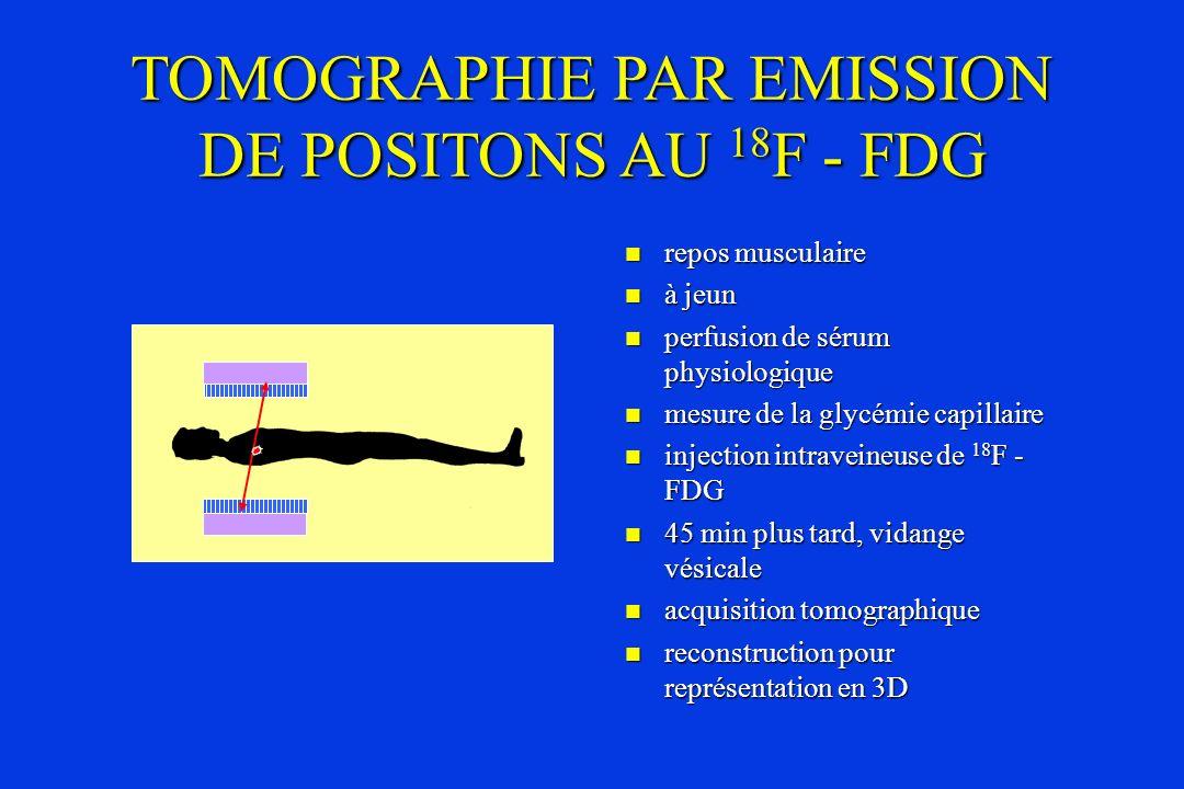 TOMOGRAPHIE PAR EMISSION DE POSITONS AU 18F - FDG