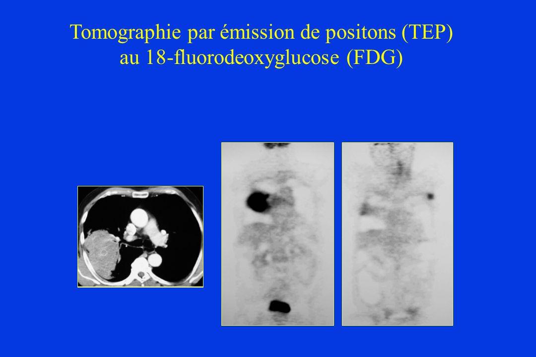 Tomographie par émission de positons (TEP)