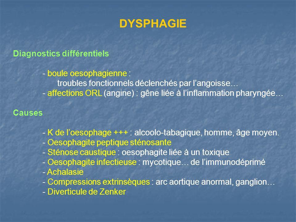 DYSPHAGIE Diagnostics différentiels - boule oesophagienne :